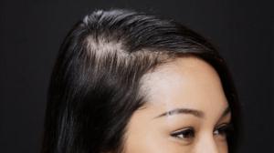 Ladies-Thinning-Hair